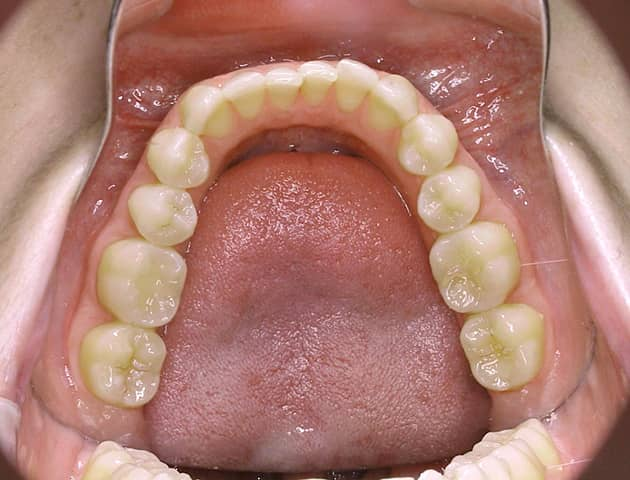 #1 Upper Teeth